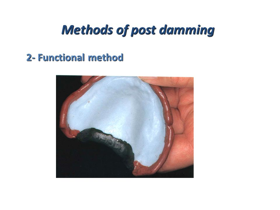 Methods of post damming