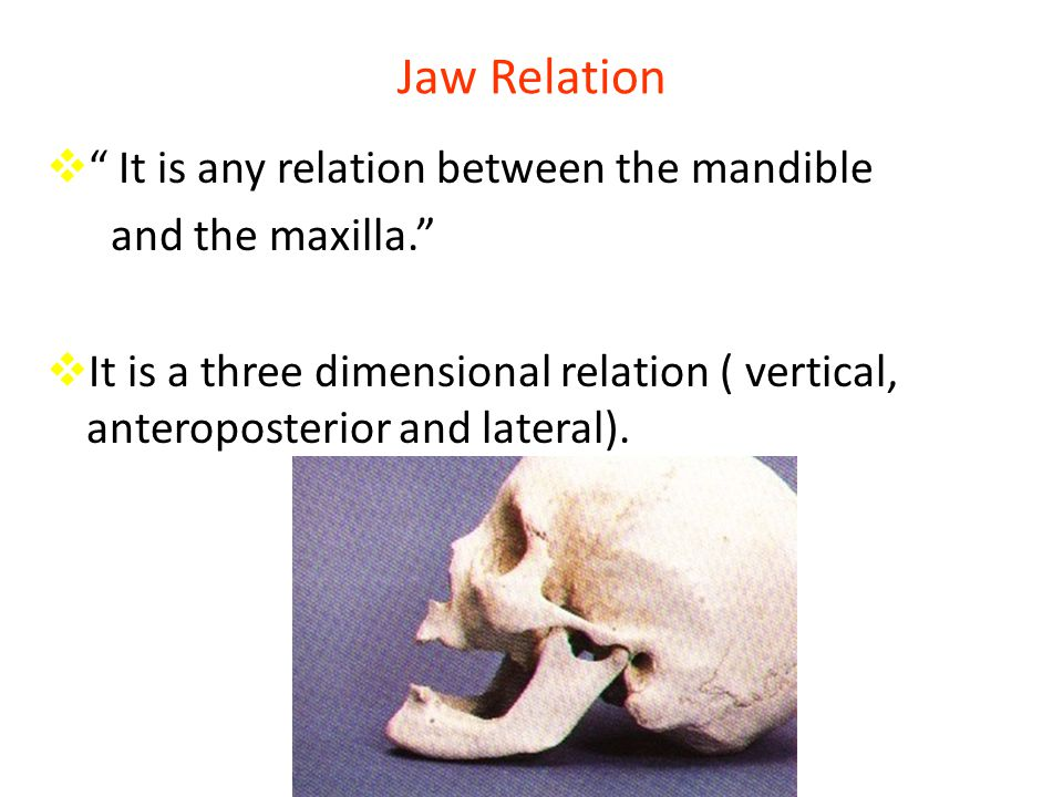Jaw Relation It is any relation between the mandible