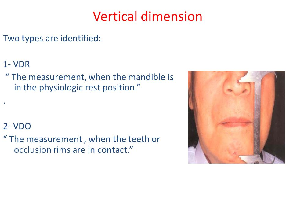 Vertical dimension Two types are identified: 1- VDR
