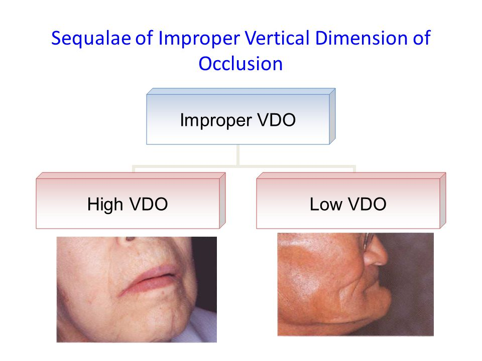 Sequalae of Improper Vertical Dimension of Occlusion