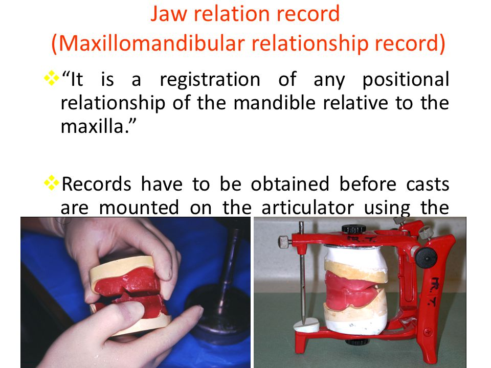 Jaw relation record (Maxillomandibular relationship record)