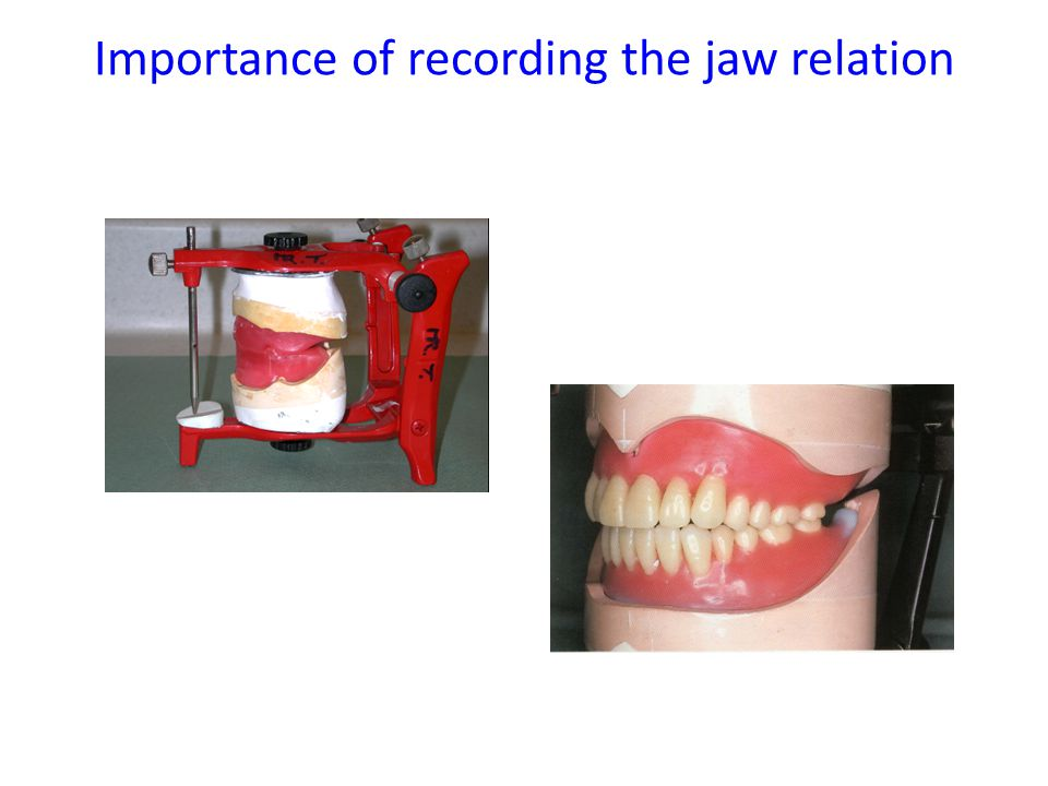 Importance of recording the jaw relation