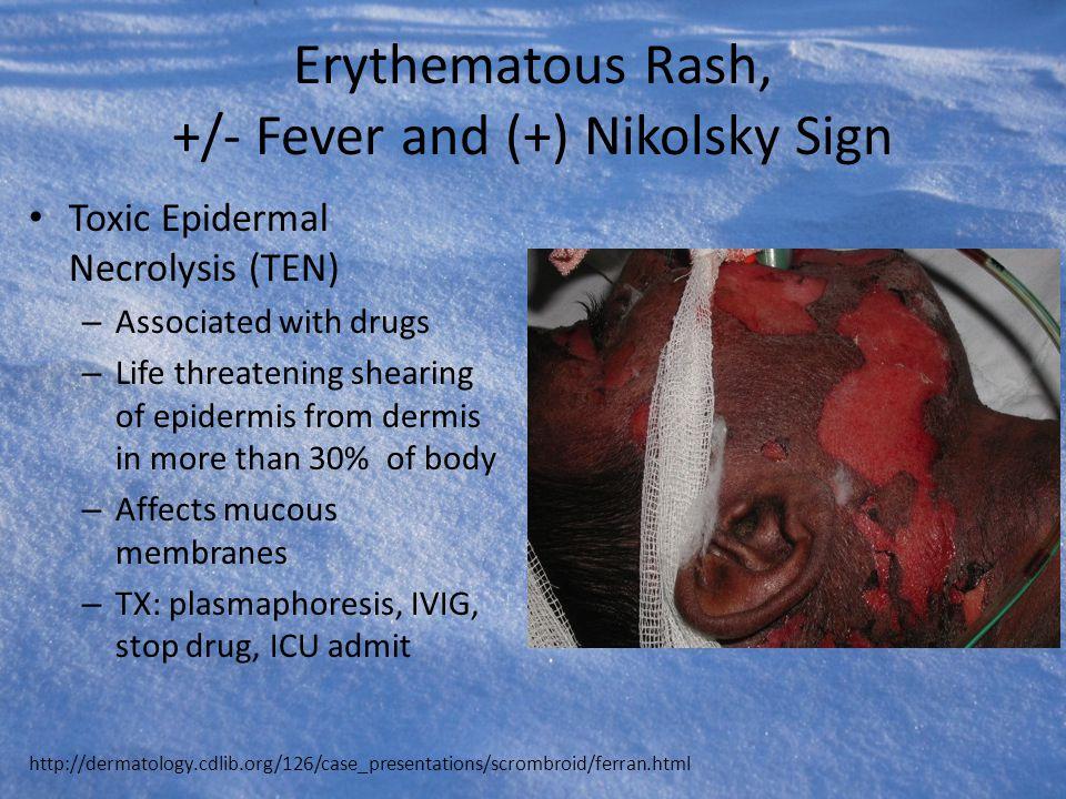 Erythematous Rash, +/- Fever and (+) Nikolsky Sign