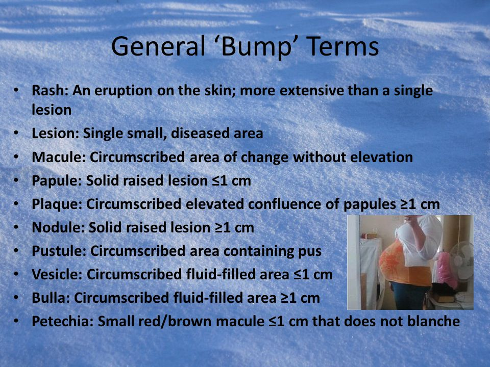 General 'Bump' Terms Rash: An eruption on the skin; more extensive than a single lesion. Lesion: Single small, diseased area.