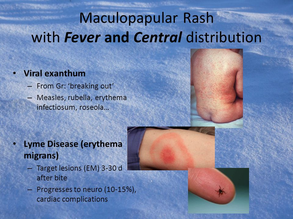 Maculopapular Rash with Fever and Central distribution