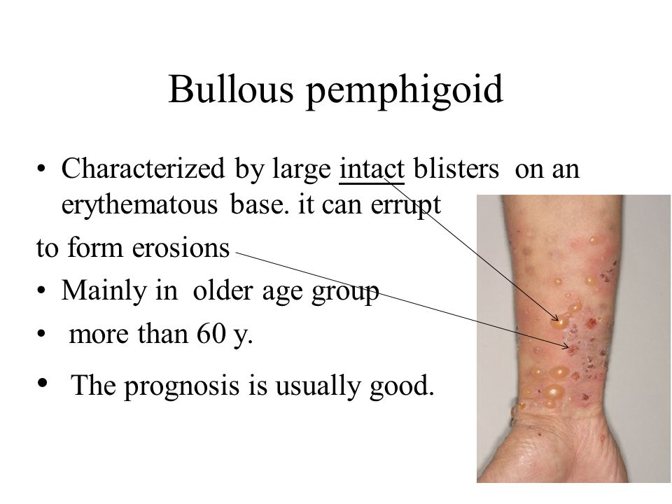 Bullous pemphigoid The prognosis is usually good.