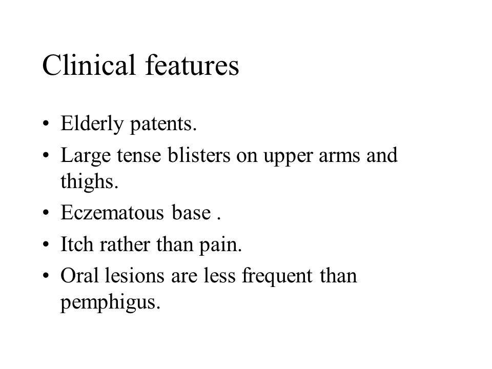 Clinical features Elderly patents.
