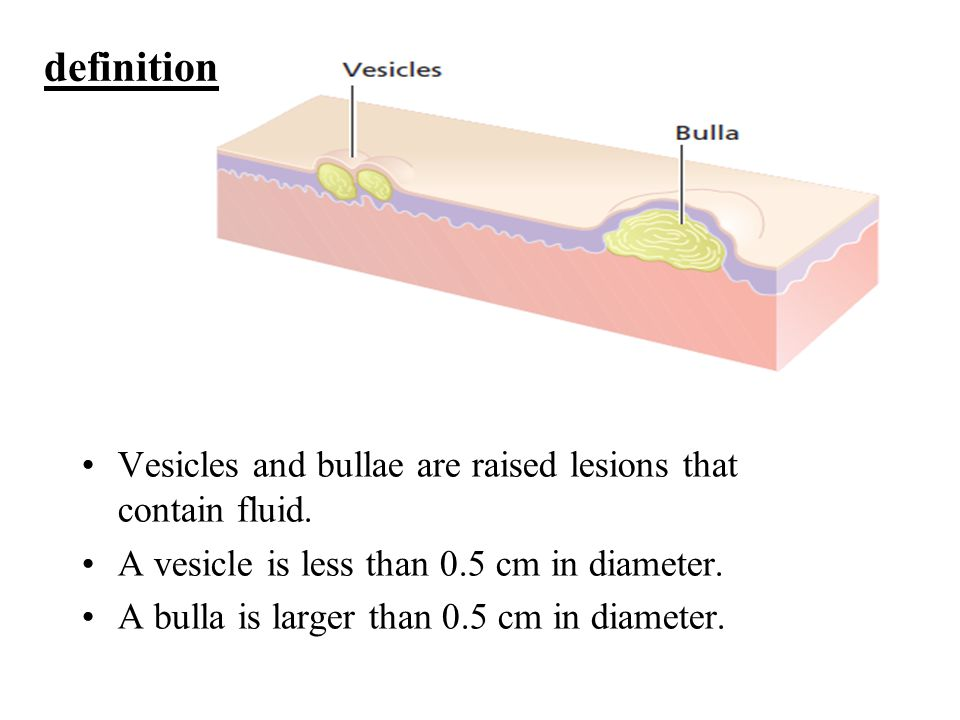 definition Vesicles and bullae are raised lesions that contain fluid.