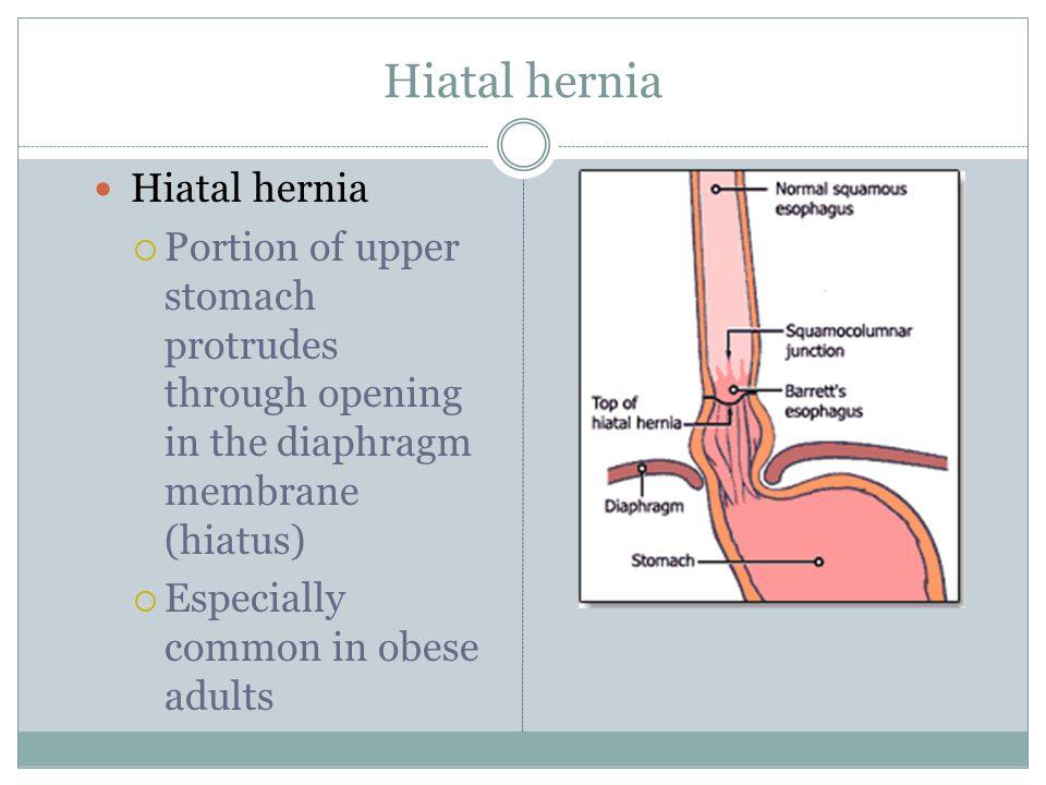 Hiatal hernia Hiatal hernia