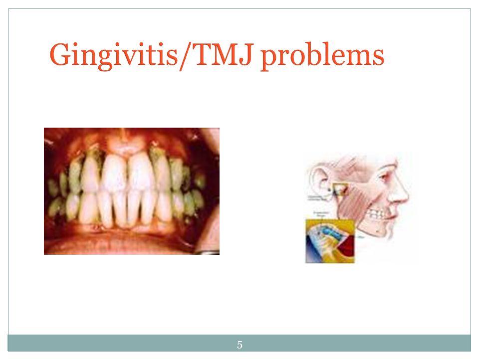 Gingivitis/TMJ problems