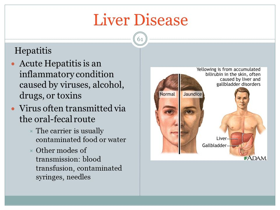 Liver Disease Hepatitis
