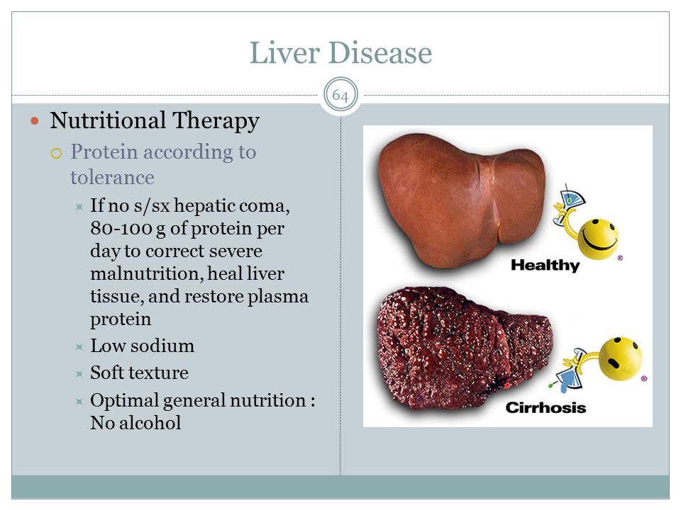 Liver Disease Nutritional Therapy Protein according to tolerance