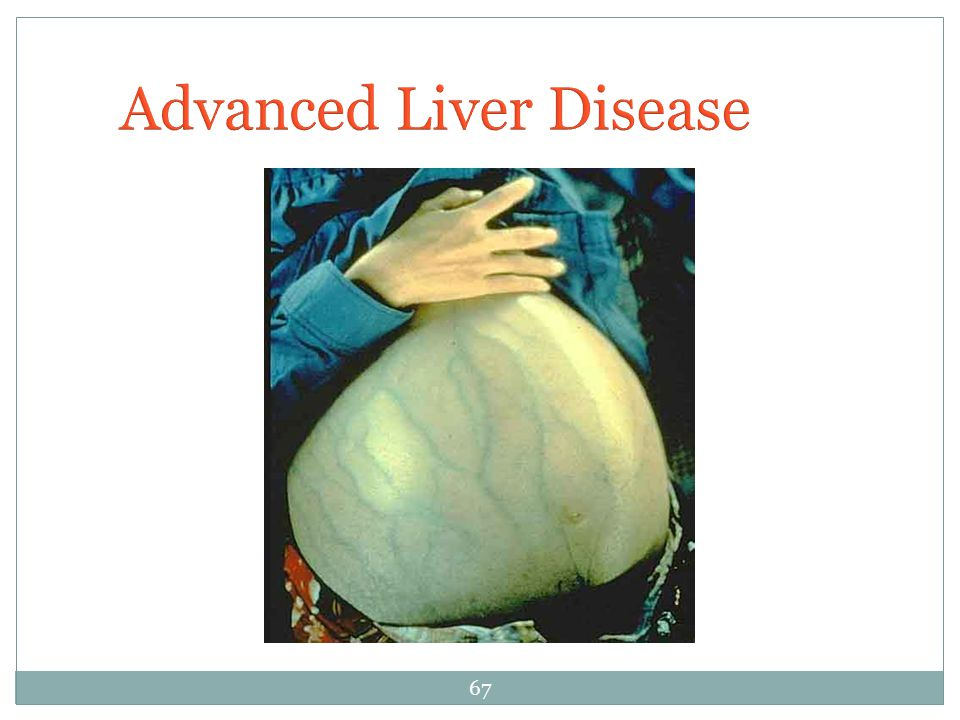 Advanced Liver Disease