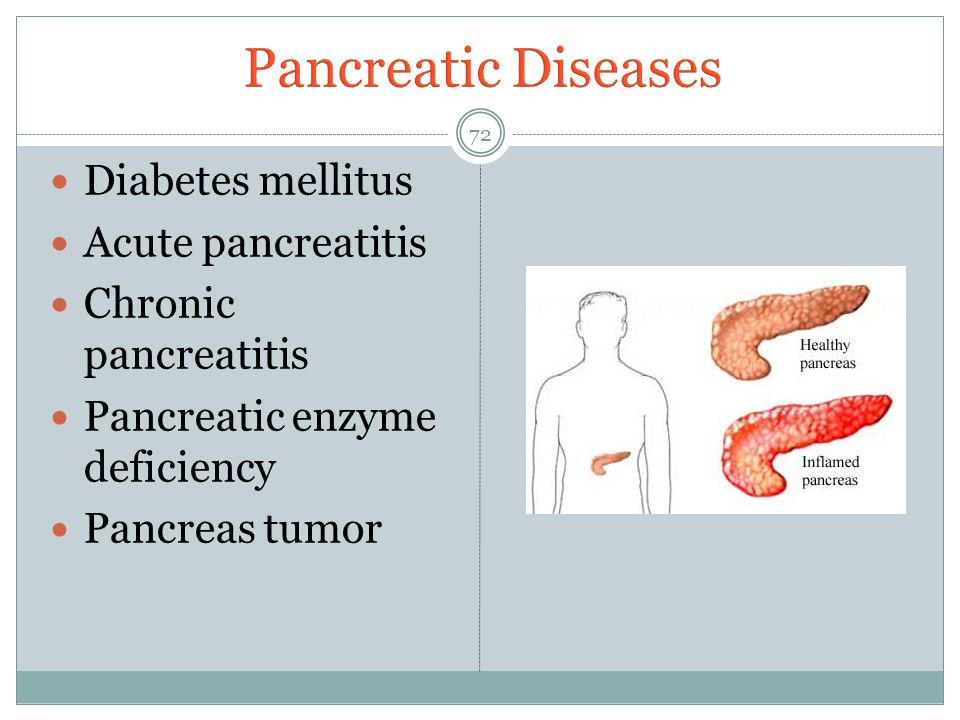 Pancreatic Diseases Diabetes mellitus Acute pancreatitis