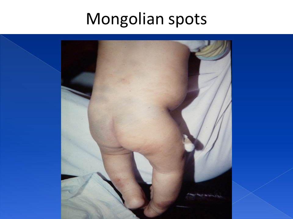 Mongolian spots