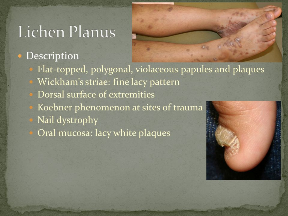 Lichen Planus Description