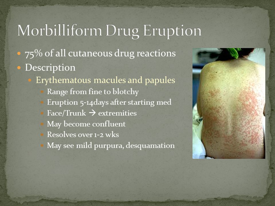 Morbilliform Drug Eruption