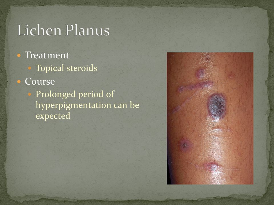 Lichen Planus Treatment Course Topical steroids