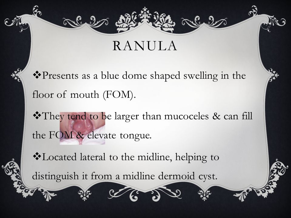 Ranula Presents as a blue dome shaped swelling in the floor of mouth (FOM).