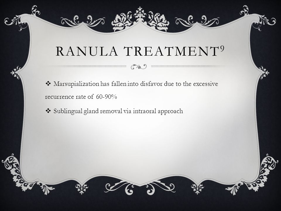 Ranula Treatment9 Marsupialization has fallen into disfavor due to the excessive recurrence rate of 60-90%