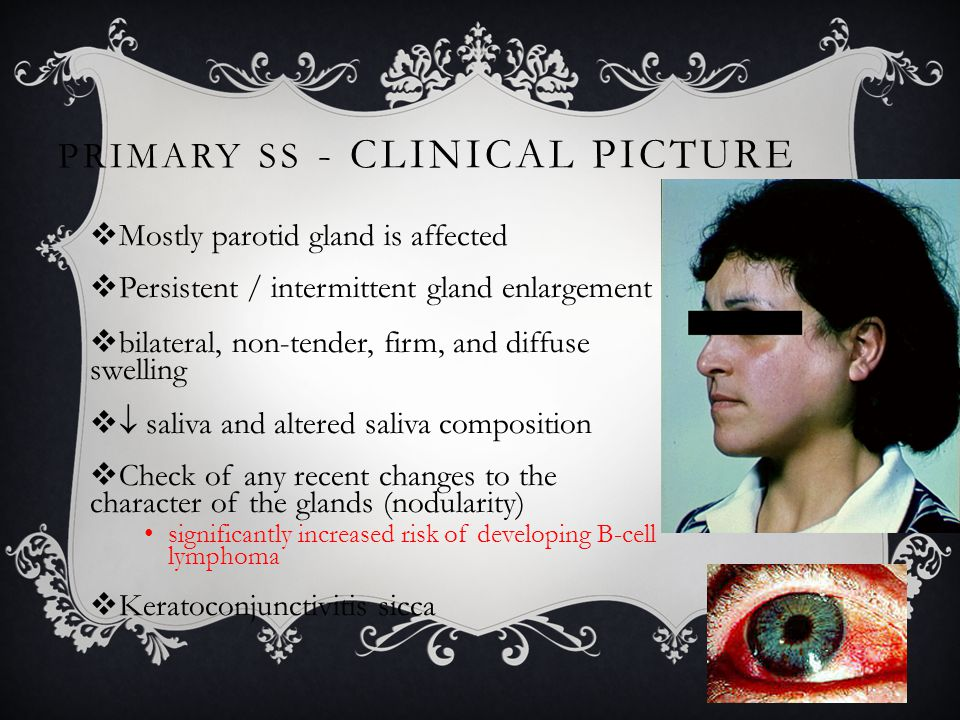 Primary SS - Clinical picture
