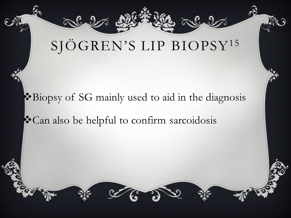 Sjögren's Lip Biopsy15 Biopsy of SG mainly used to aid in the diagnosis.