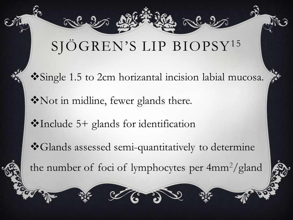 Sjögren's Lip Biopsy15 Single 1.5 to 2cm horizantal incision labial mucosa. Not in midline, fewer glands there.