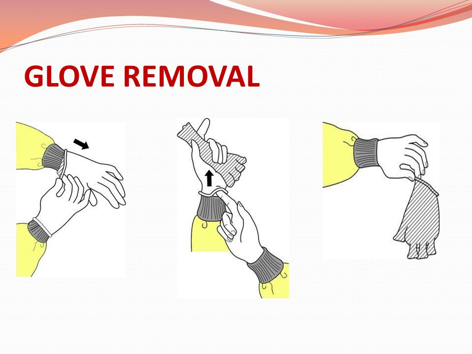 GLOVE REMOVAL