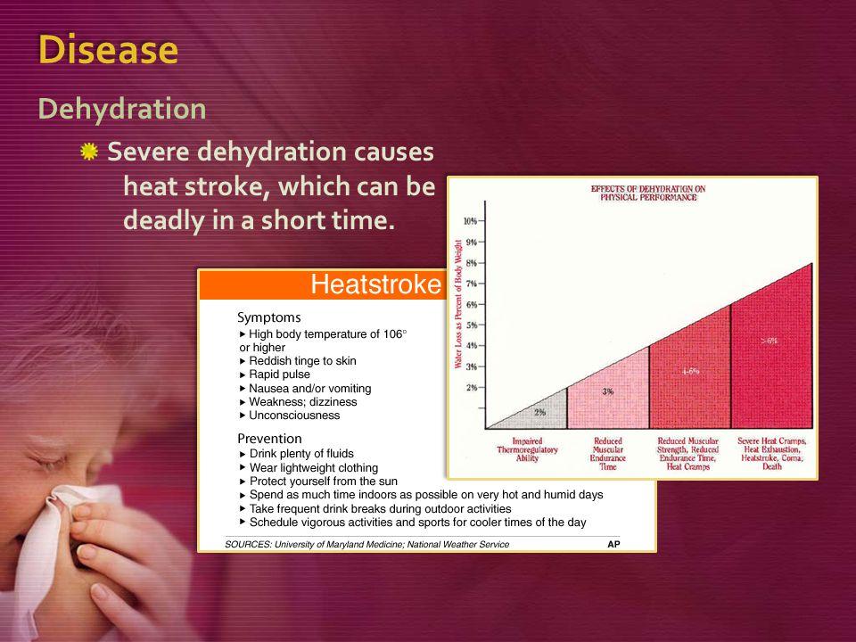 Disease Dehydration.