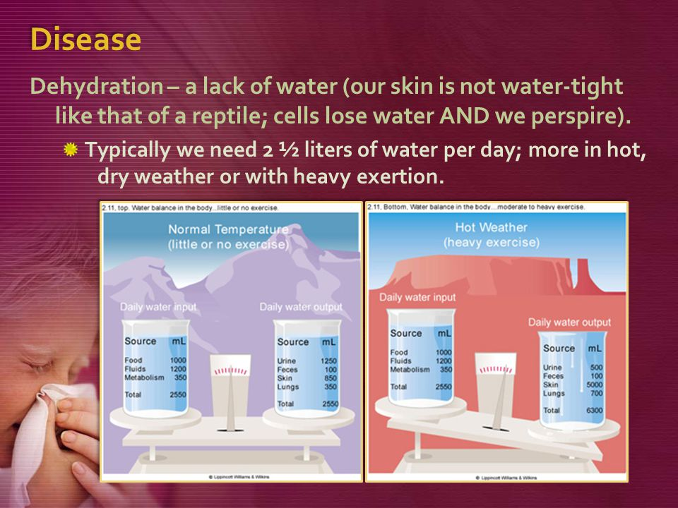 Disease Dehydration – a lack of water (our skin is not water-tight like that of a reptile; cells lose water AND we perspire).