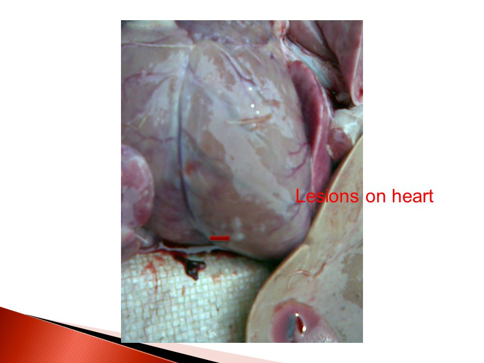 Lesions on heart