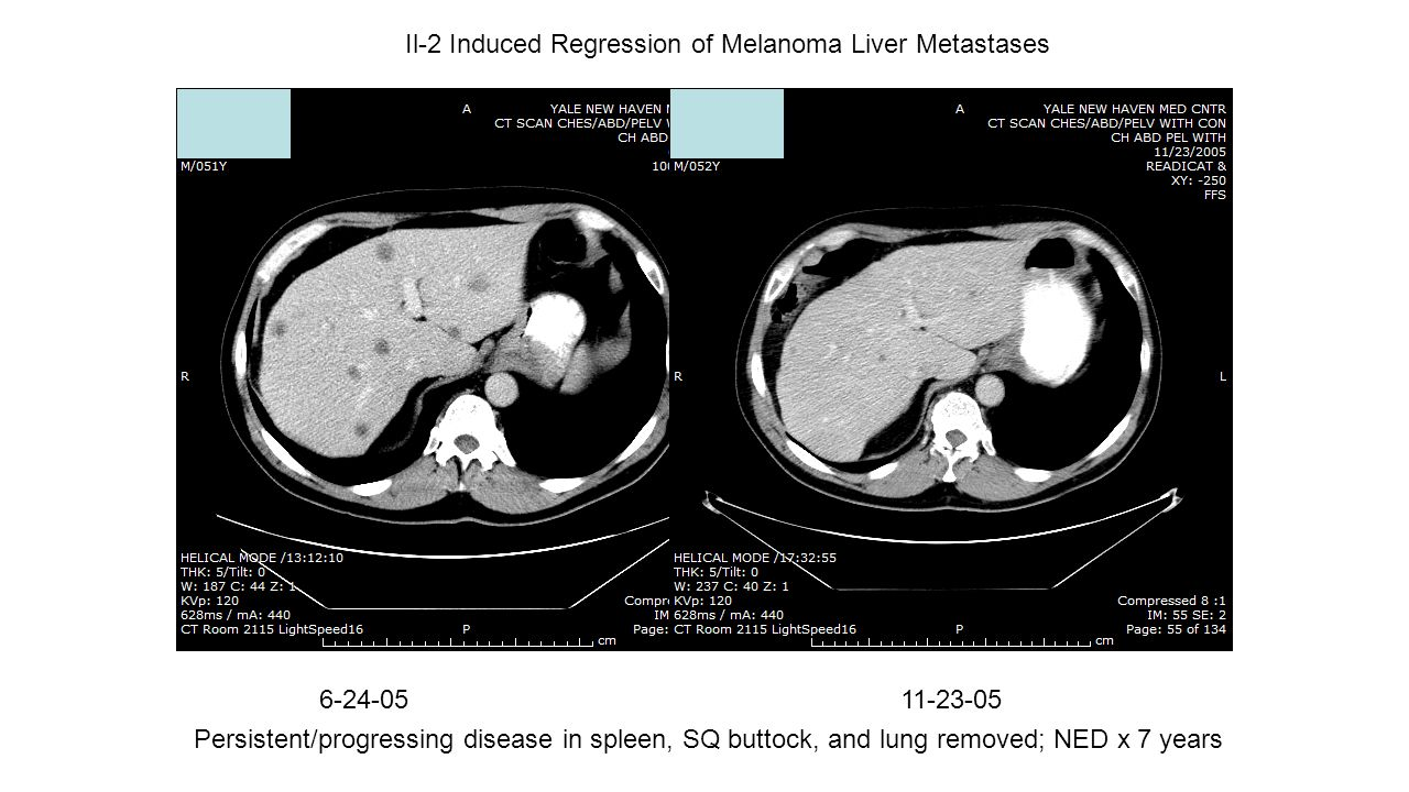 Il-2 Induced Regression of Melanoma Liver Metastases