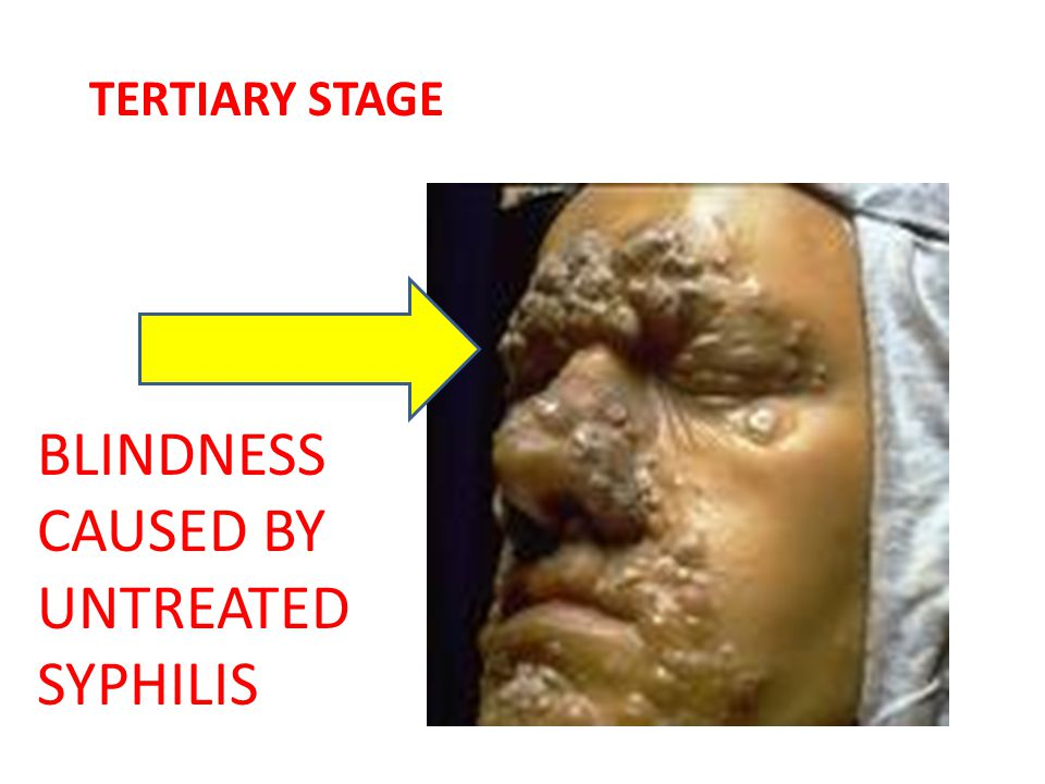 TERTIARY STAGE BLINDNESS CAUSED BY UNTREATED SYPHILIS