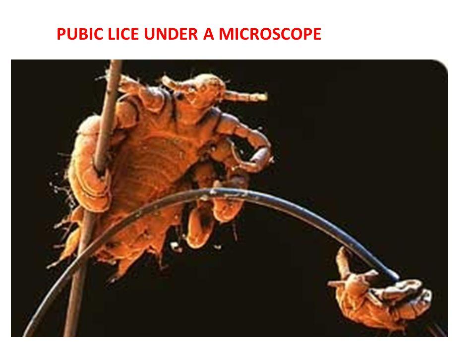 PUBIC LICE UNDER A MICROSCOPE