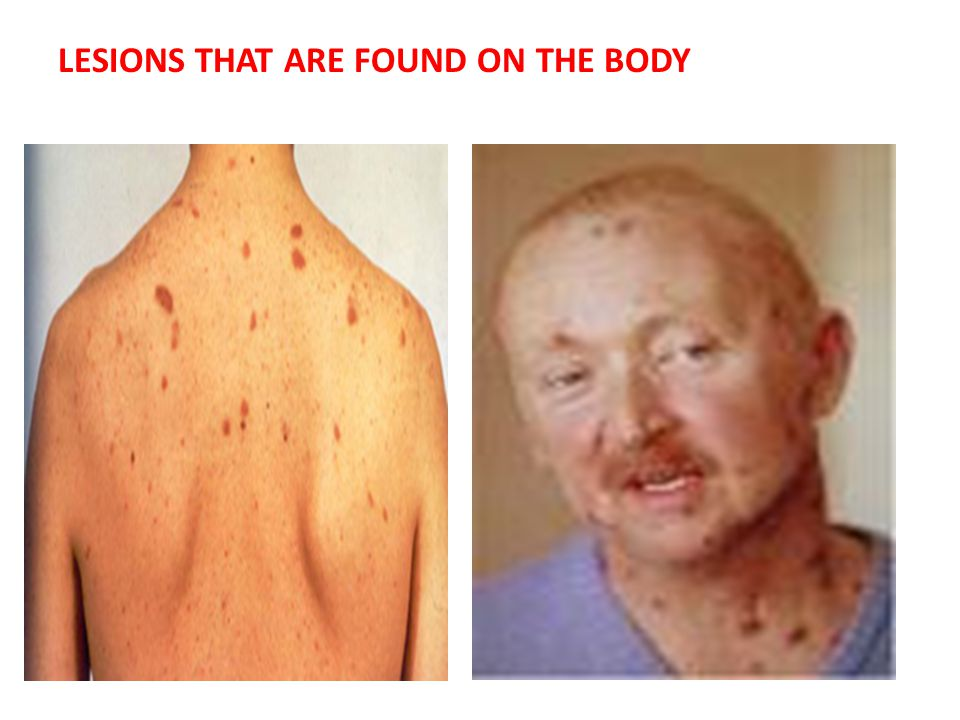LESIONS THAT ARE FOUND ON THE BODY
