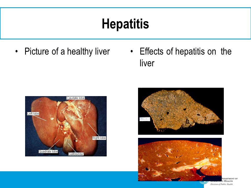 Hepatitis Picture of a healthy liver Effects of hepatitis on the liver