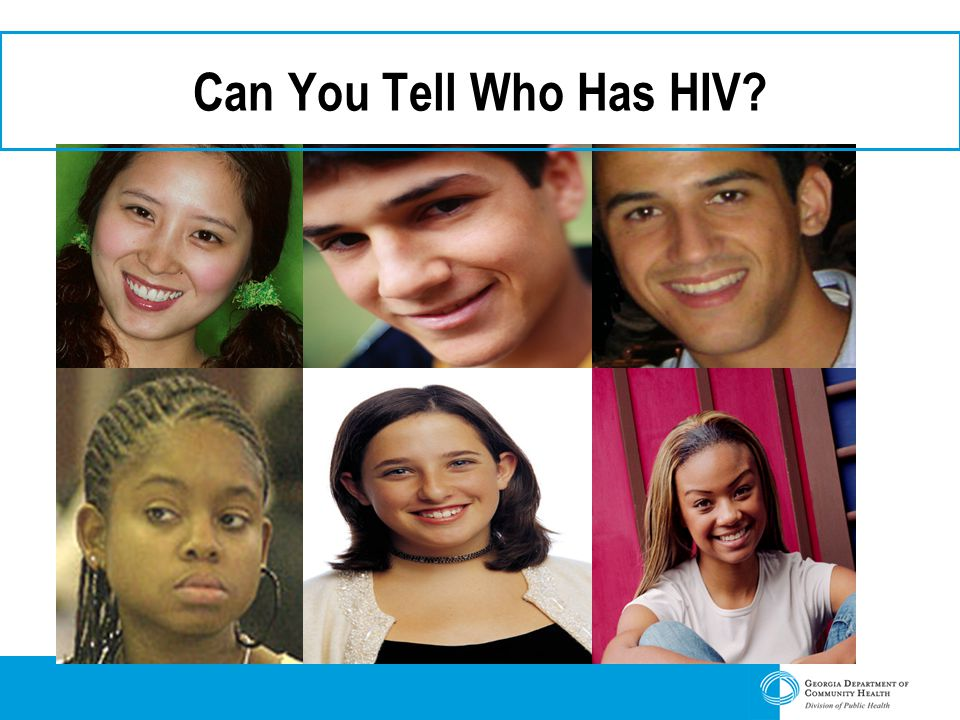 Can You Tell Who Has HIV