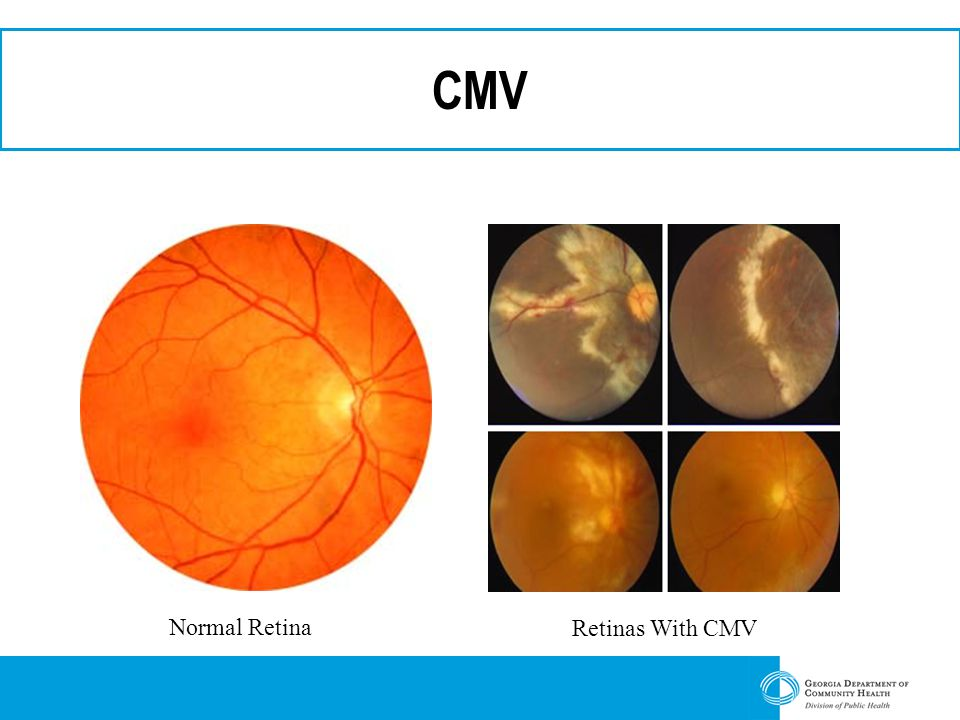 CMV Normal Retina Retinas With CMV