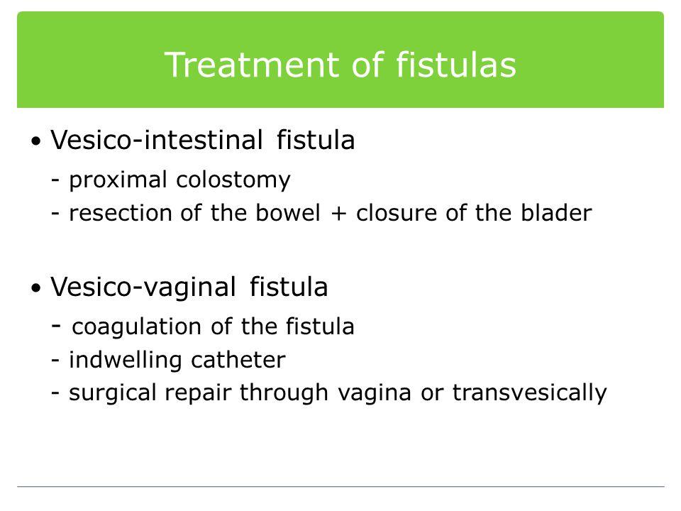 Treatment of fistulas Vesico-intestinal fistula - proximal colostomy