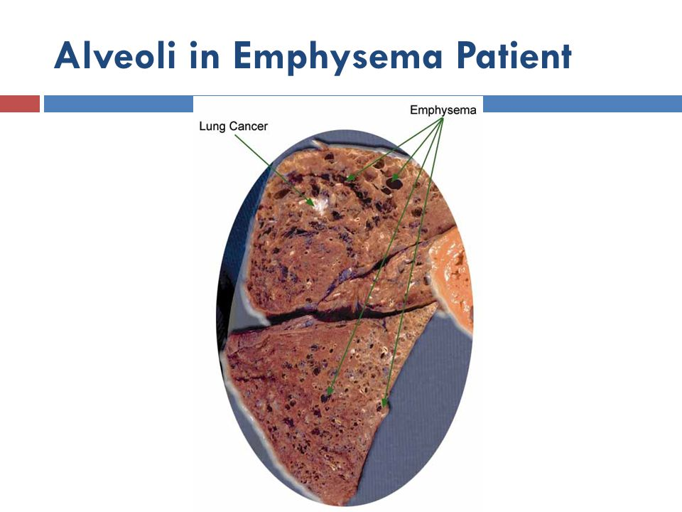 Alveoli in Emphysema Patient