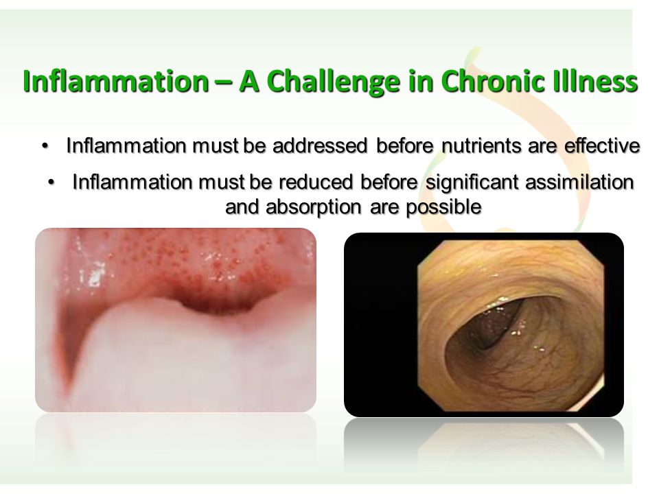 Inflammation – A Challenge in Chronic Illness