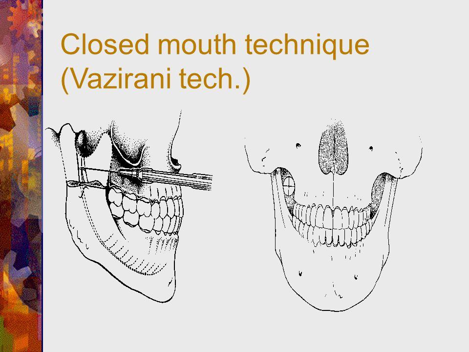 Closed mouth technique (Vazirani tech.)