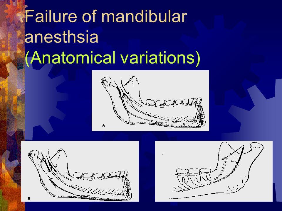 Failure of mandibular anesthsia (Anatomical variations)