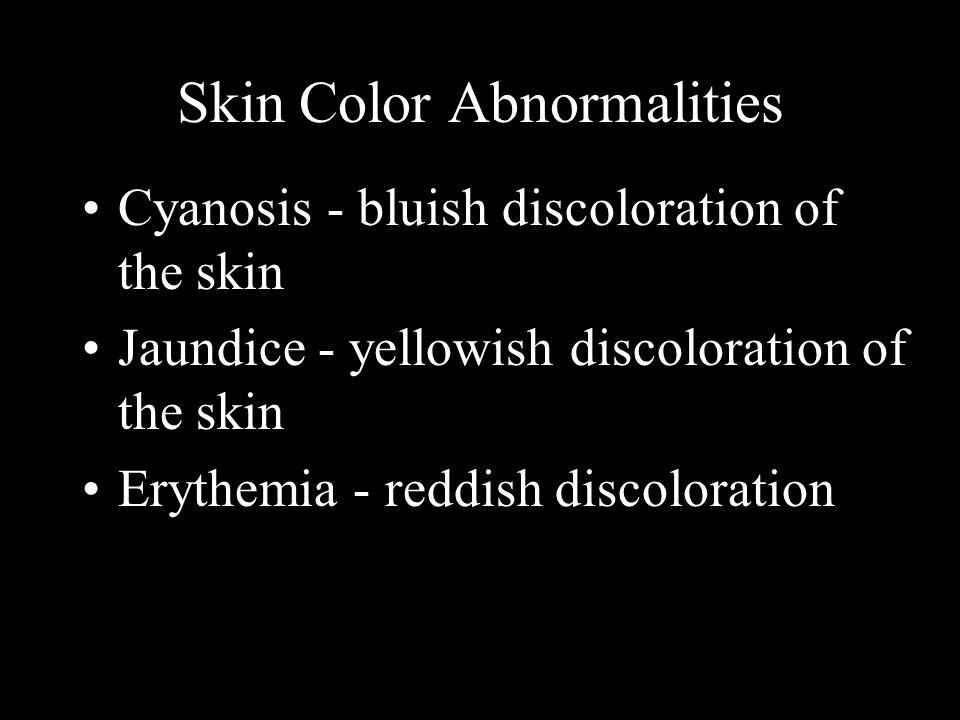 Skin Color Abnormalities