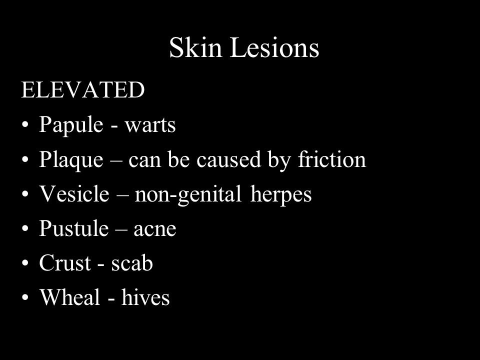 Skin Lesions ELEVATED Papule - warts