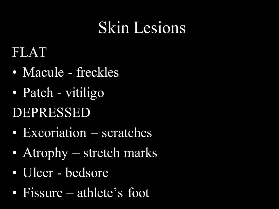 Skin Lesions FLAT Macule - freckles Patch - vitiligo DEPRESSED