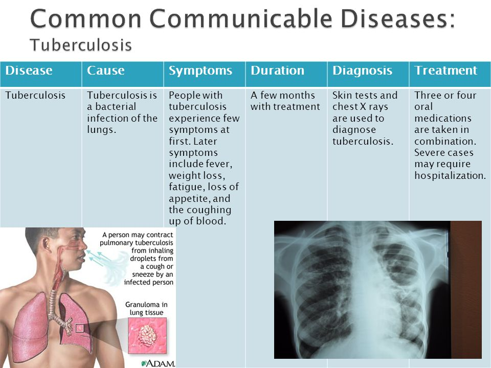Common Communicable Diseases: Tuberculosis