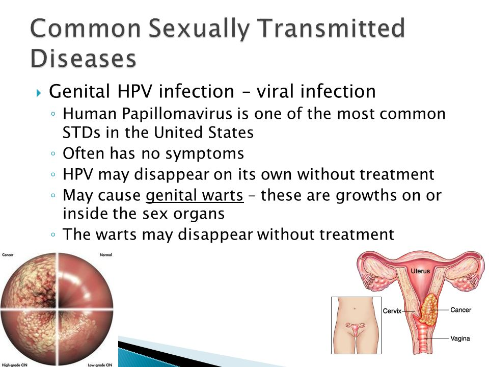 Most common sexually transmitted infection