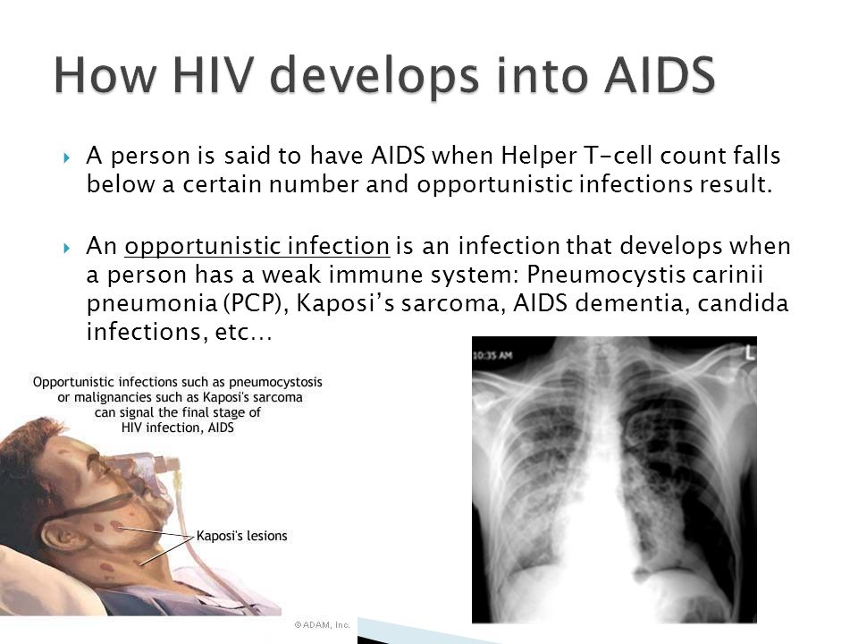 How HIV develops into AIDS