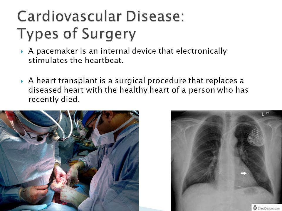 Cardiovascular Disease: Types of Surgery